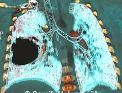 Akciğer Kistleri ve Tedavisi