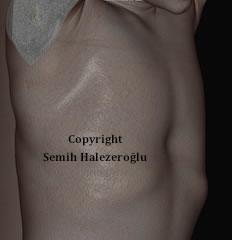 kunduracı göğsü ikinci görüntü