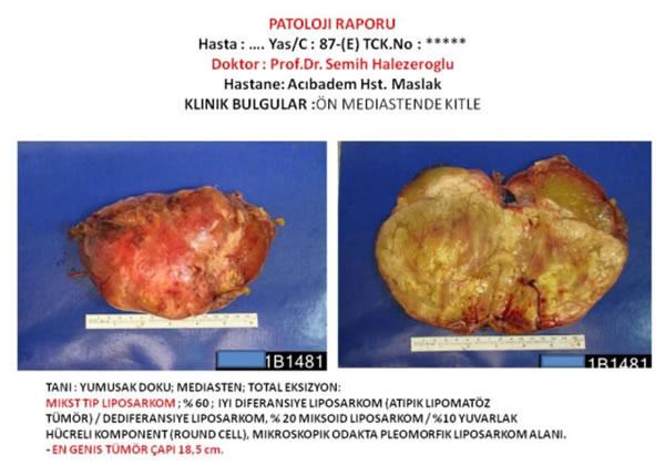 mediasten tümörü & kisti tedavisi ve ameliyatı