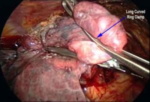 amfizem ameliyat görüntüsü
