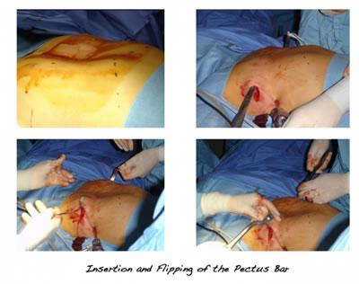 kunduracı göğsü NUSS ameliyatı