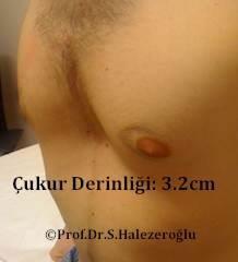 Pektus Ekskavatum ile kunduracı göğsü tedavisi