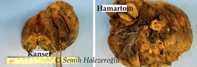 hamartom - akciğer kanseri görüntüsü