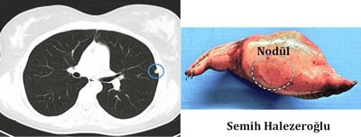akciğer lenf bezi, akciğer içinde lenf nodu