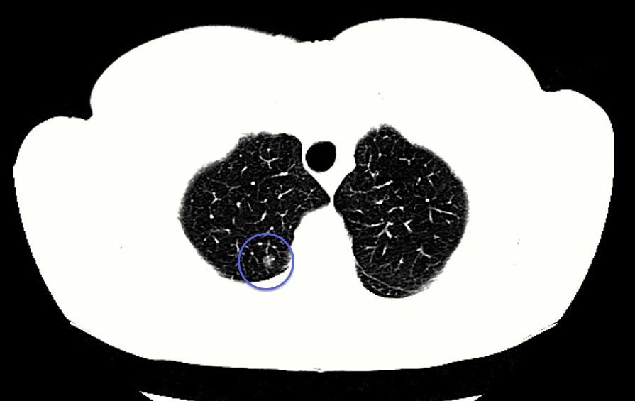 Радиологическое изображение узелков.